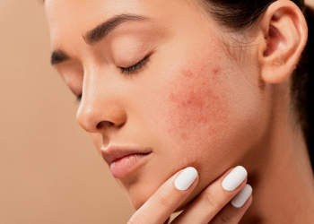 How to avoid acne?